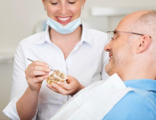 What you require to know about All on four dental implants?